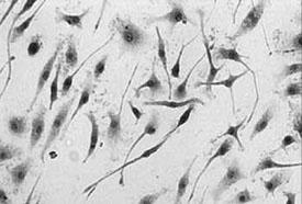 Neuroblasts